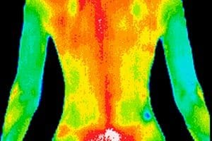 10/11: Medical Infrared Thermal Imaging